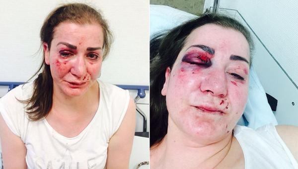 Türk kadına tramvayda saldırı